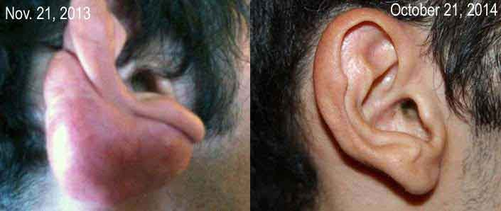 Post otoplasty keloid treated with cryotherapy