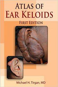Atlas of Ear Keloids, 1st Edition