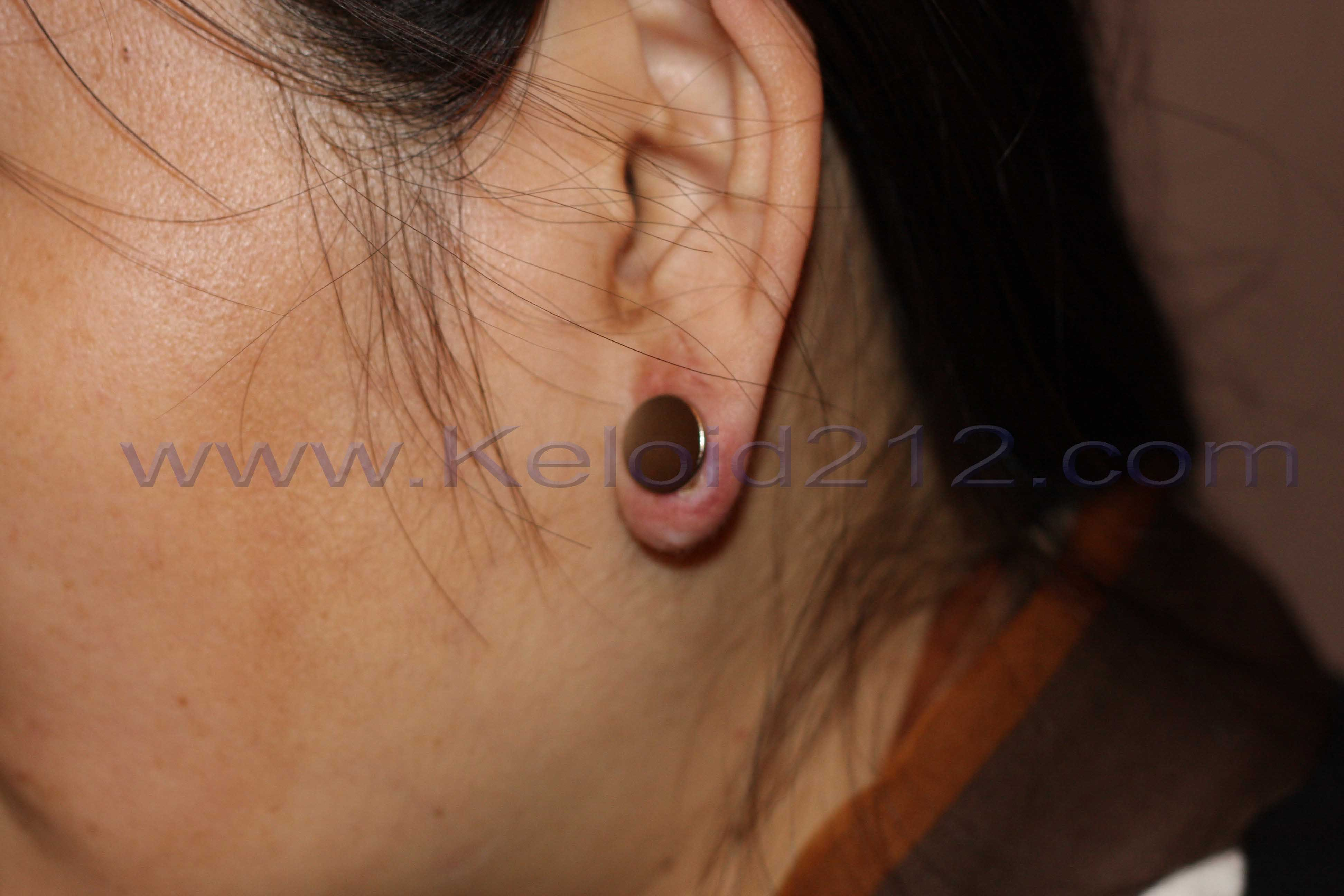 Earlobe Keloid Cure Results