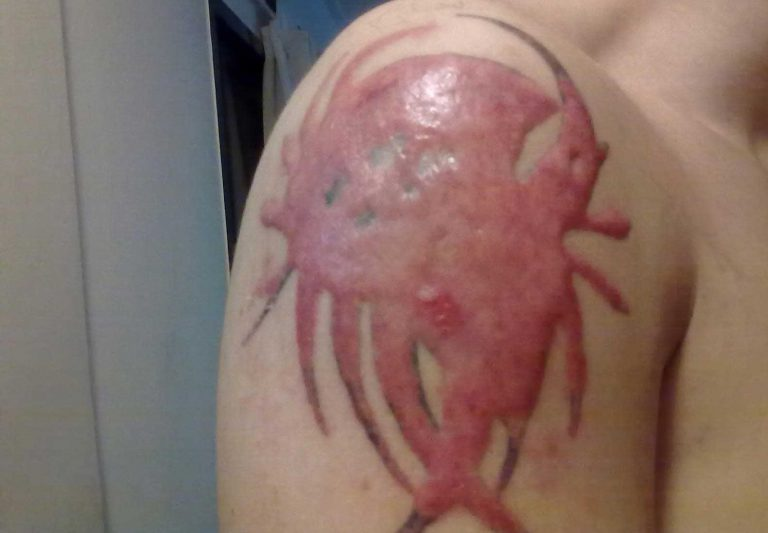 Keloid Formation After Laser Tattoo Removal
