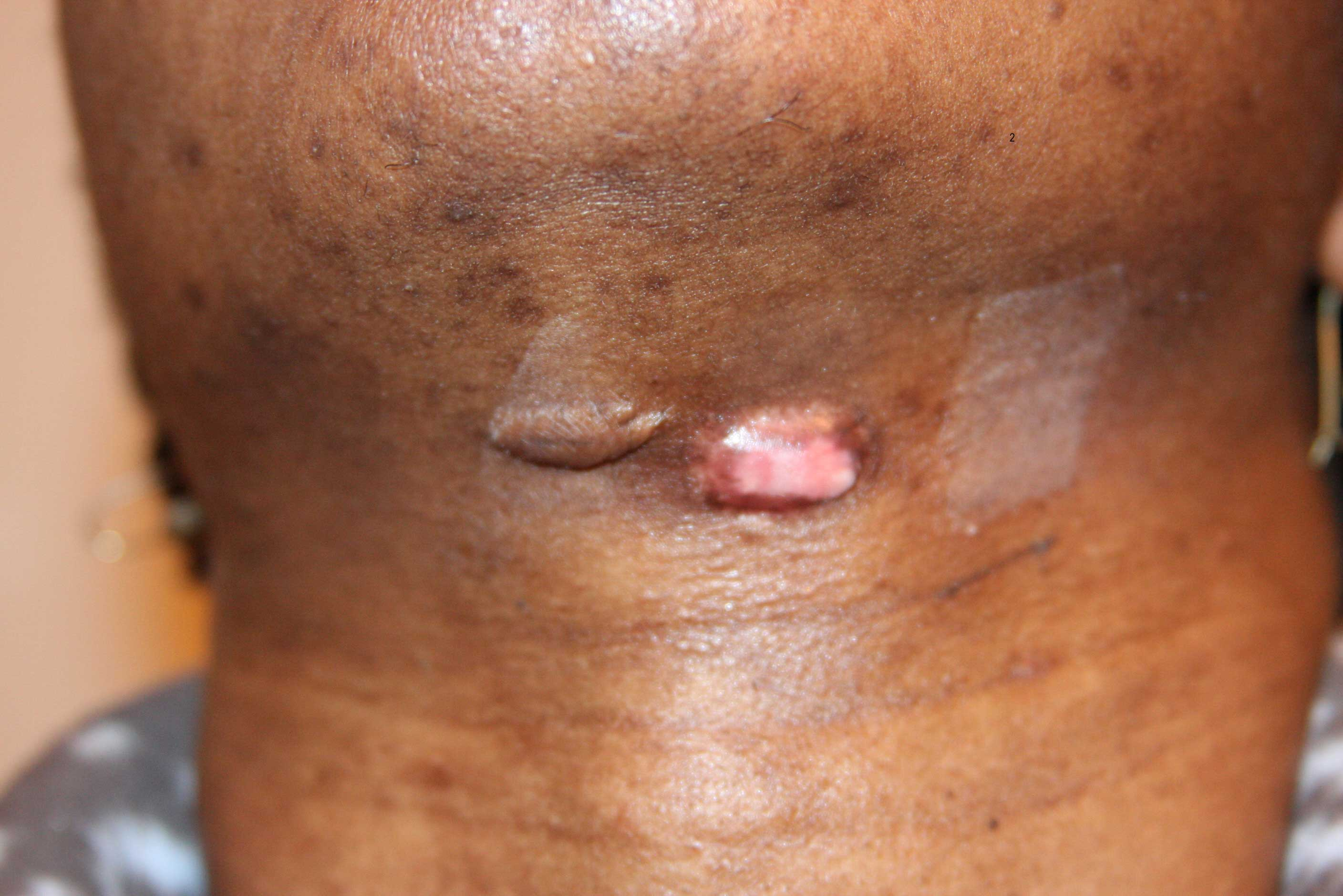 Tumoral Neck Keloid treated with cryotherapy