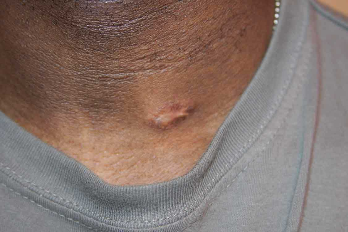 Neck Keloid - Treated with cryotherapy