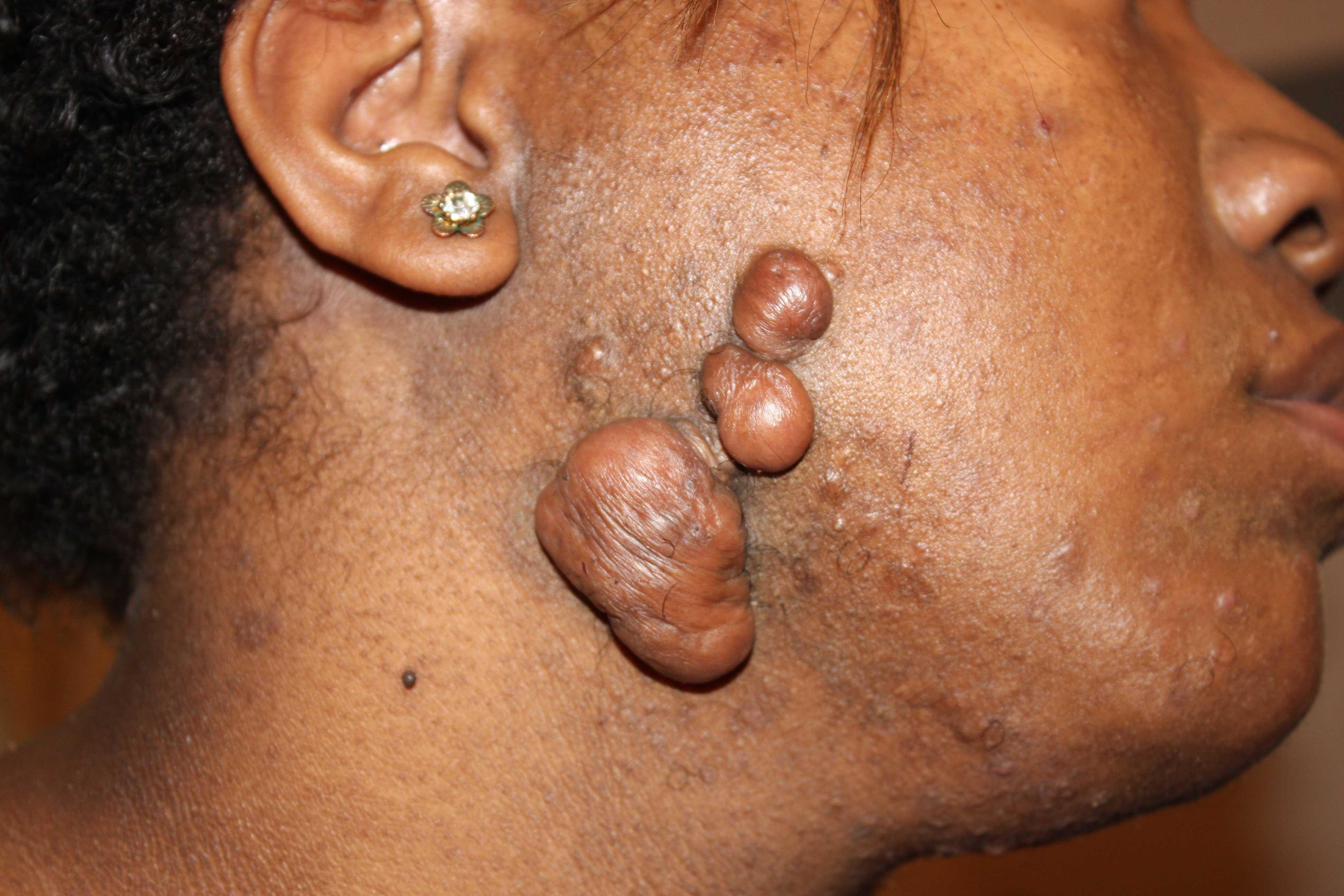 facial tumor keloid