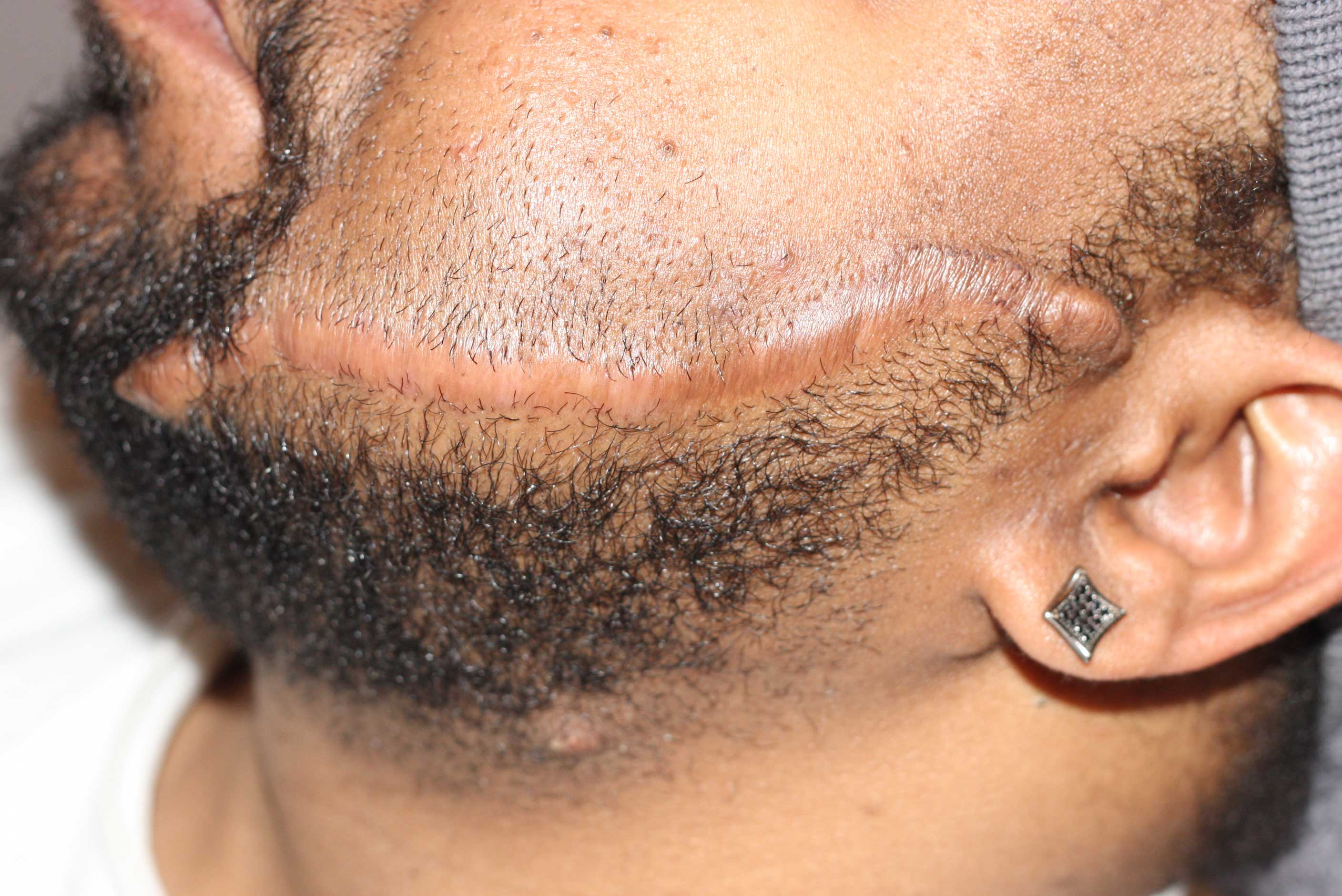 Facial Keloid Treatment