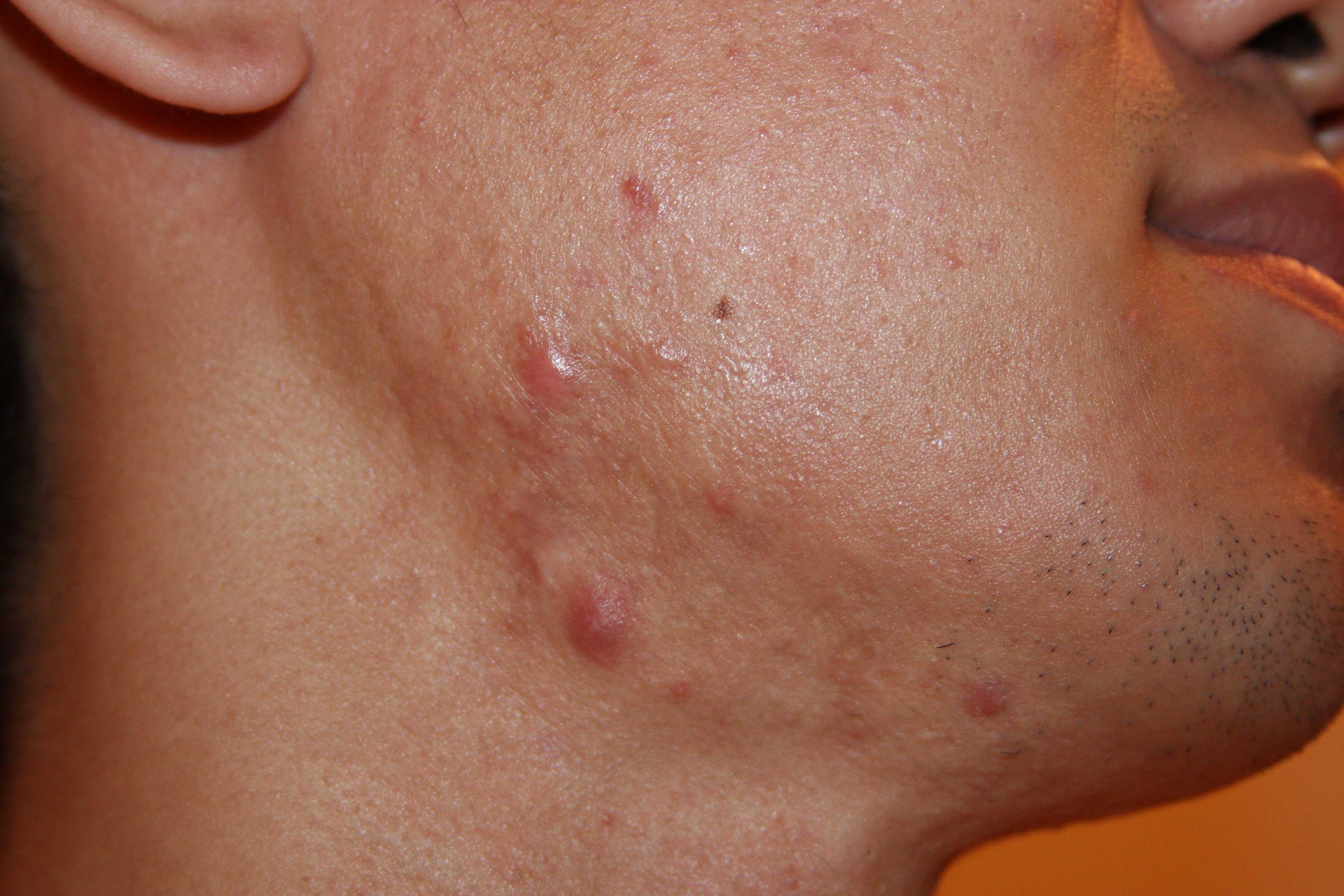 Facial keloid in white skin individual