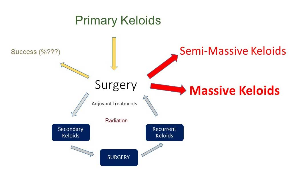 Vicious cycle of keloid surgery