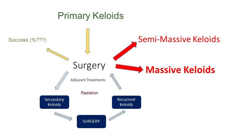 Keloid Successful Treatment
