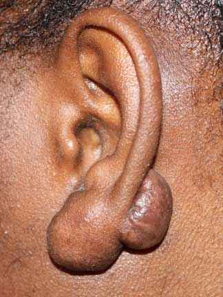 Tumoral Earlobe Keloids - Recurrence after surgery.