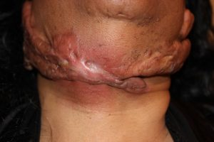 Infected Neck Keloid
