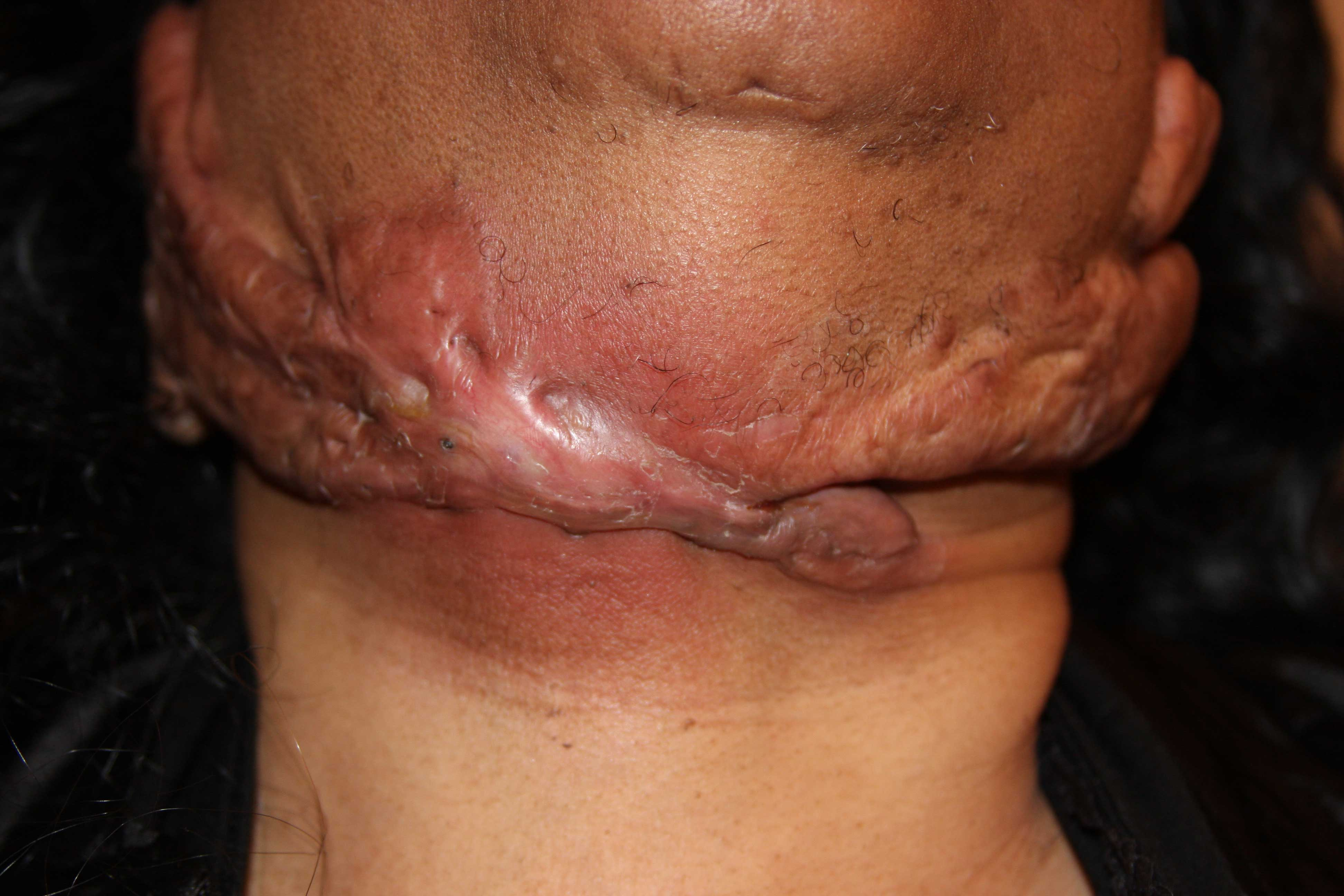Keloids Infection