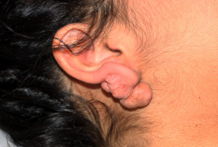 Large Earlobe Keloid