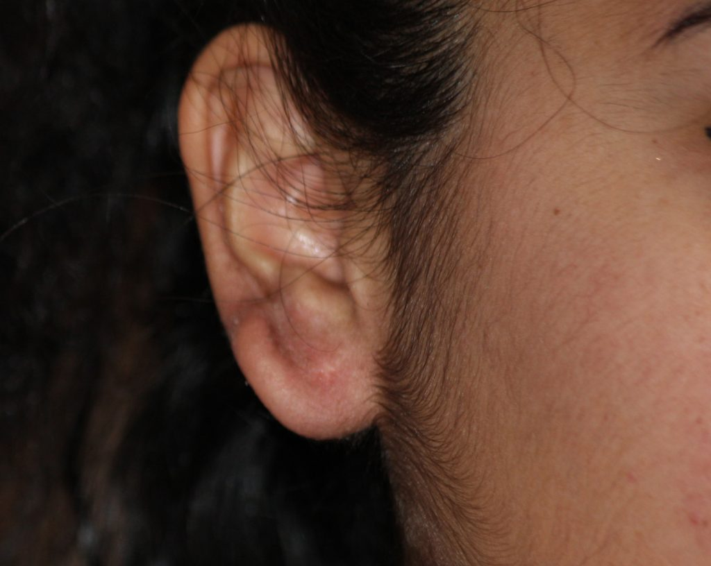 earlobe keloid