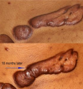 Progression of keloid lesions