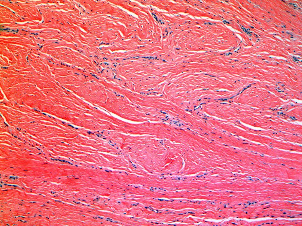 Pathology of Keloid