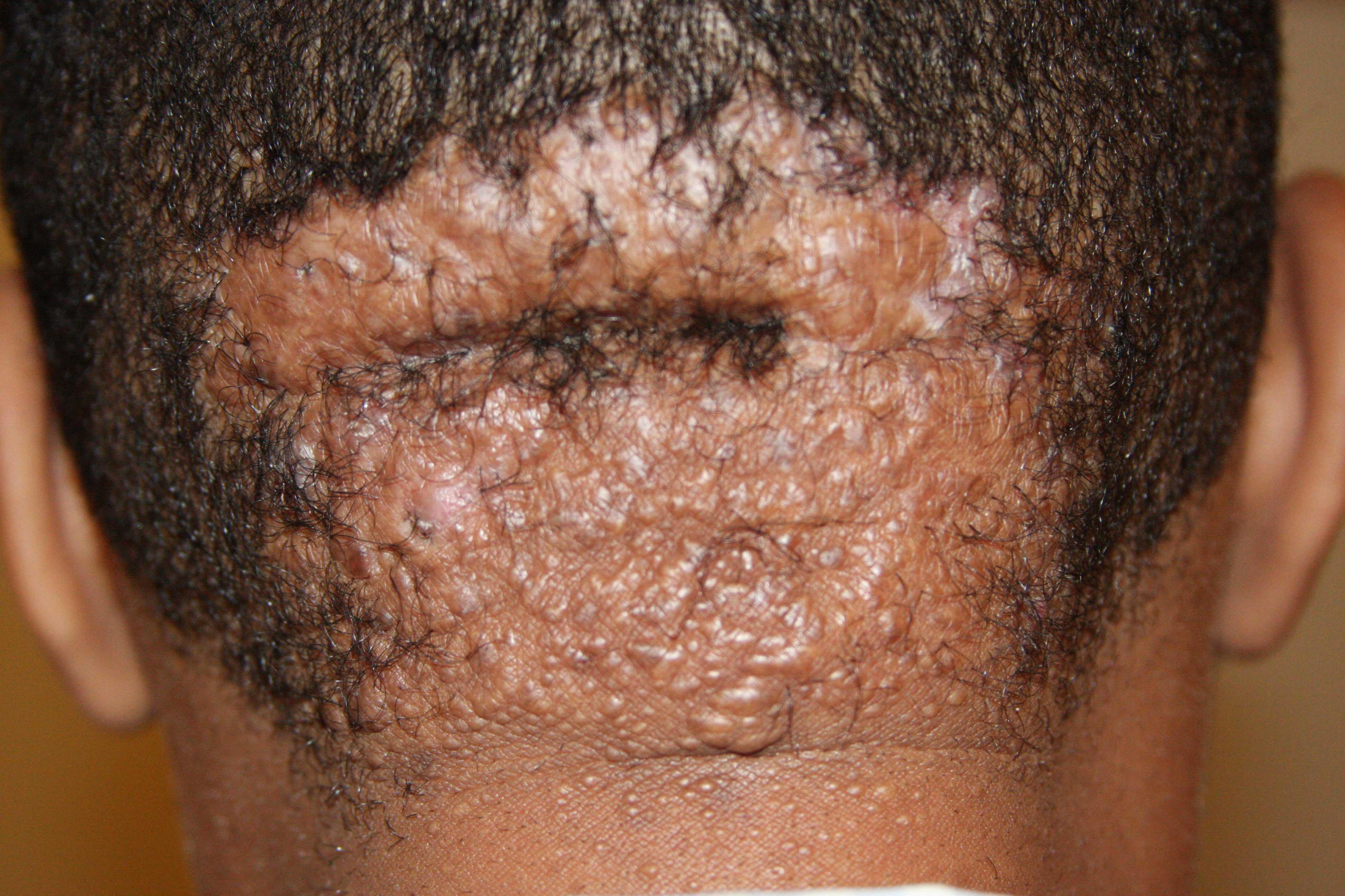 Widespread scalp keloid