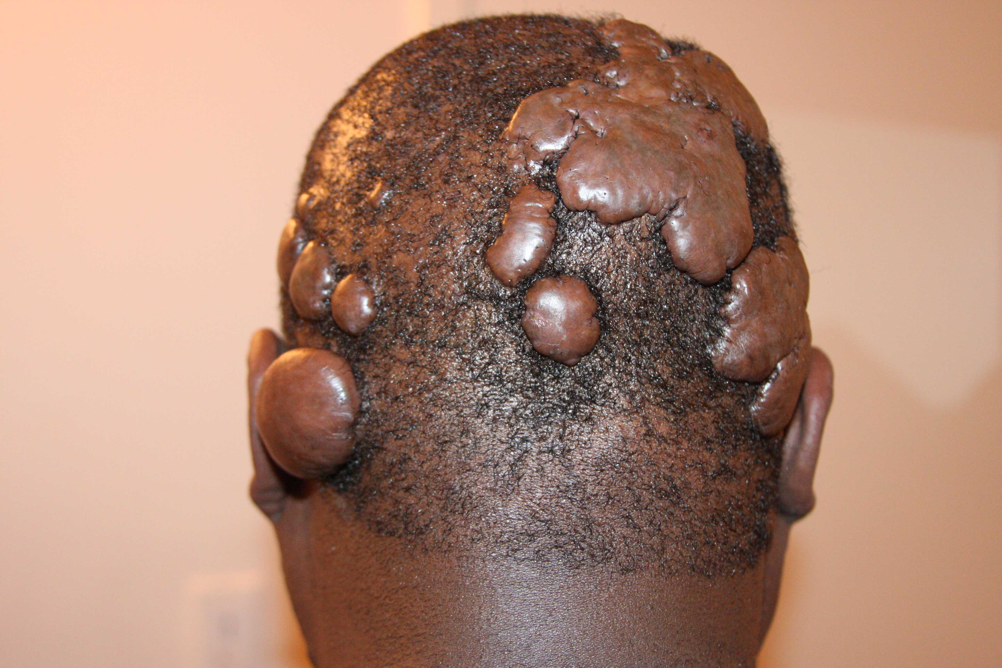 Multiple scalp keloids