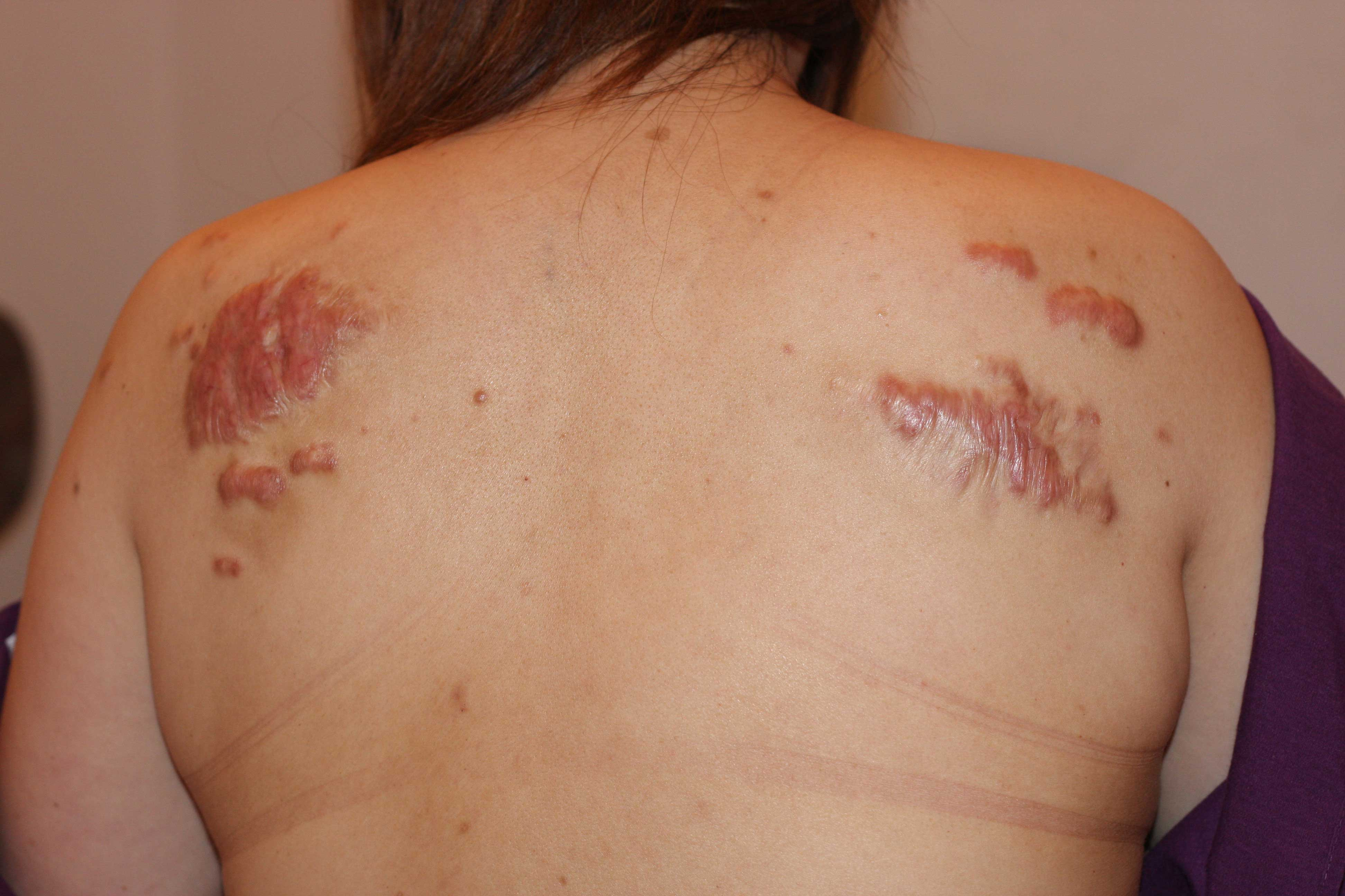 Shoulder Keloid Surgery