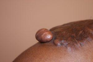Keloid Tumor, Shoulder