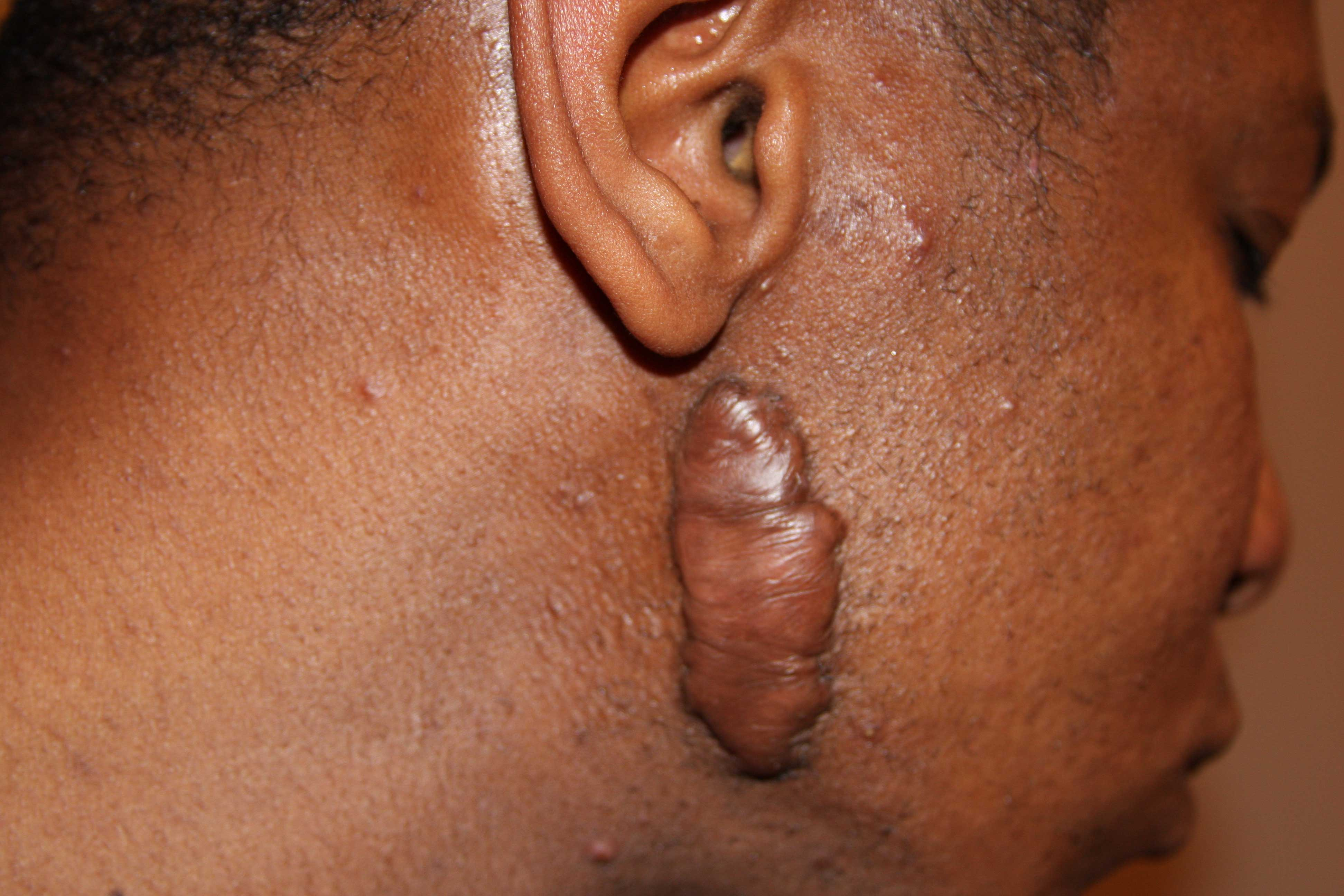 Recurrent face keloid after surgical removal.