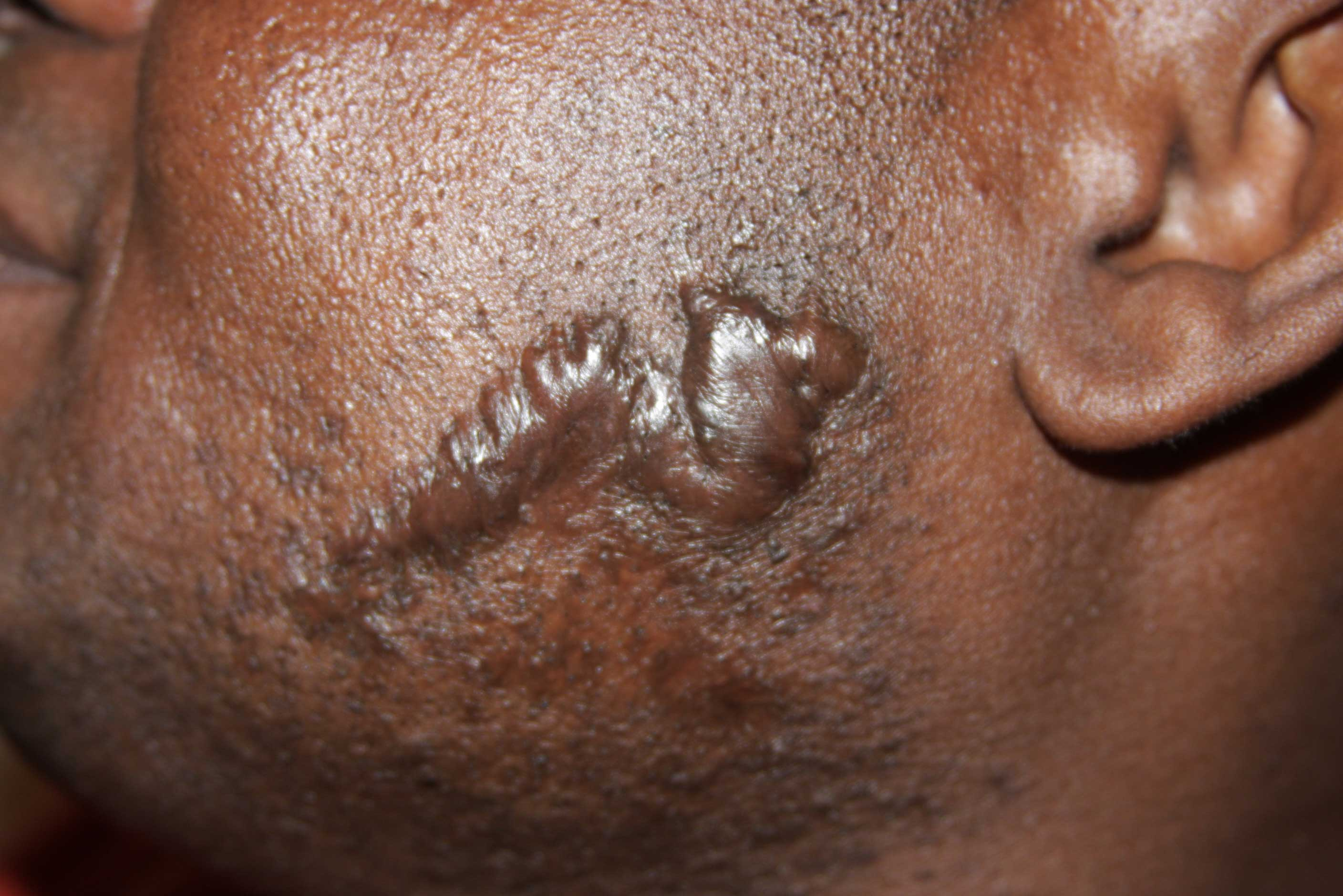 recurrent face keloids