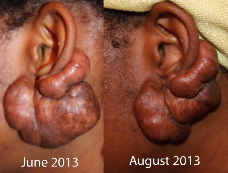 Massive Ear Keloid