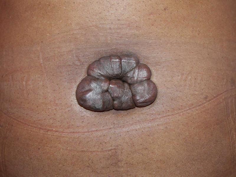 tumoral keloids removal