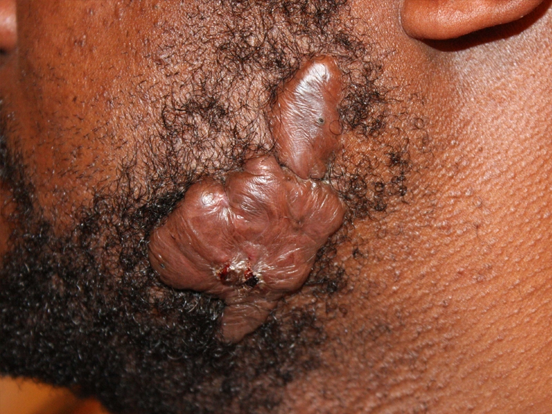Massive face keloid removal