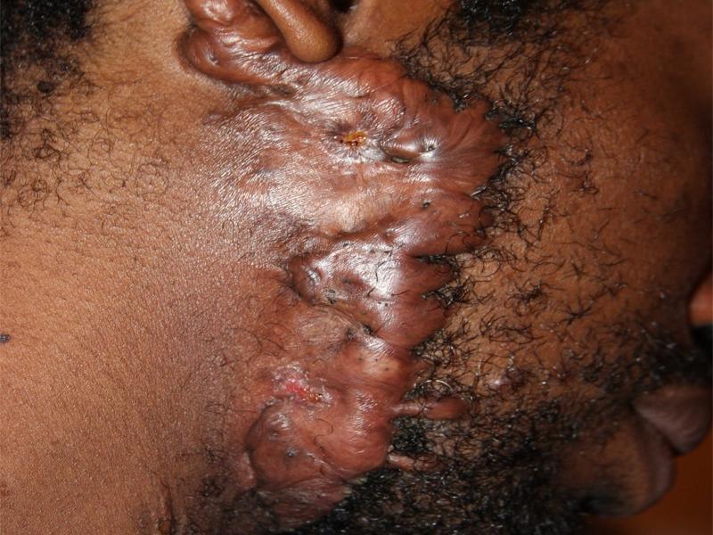 Severe Face Keloid surgery