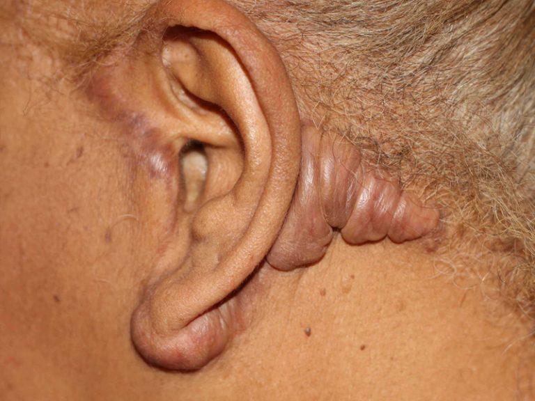 Cosmetic Surgery Keloids