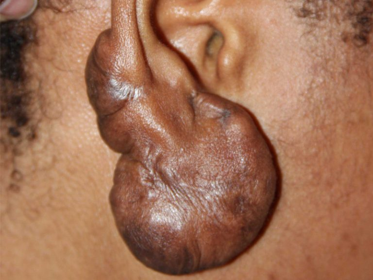 Very Large Ear Keloid - Failure of Surgery