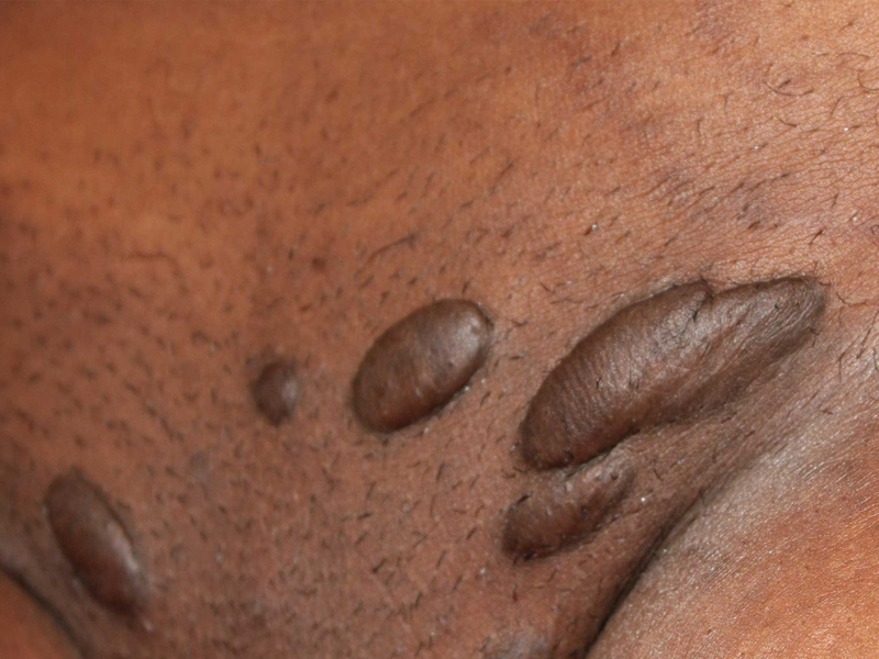 Multiple pubic area keloids in a young African American female.