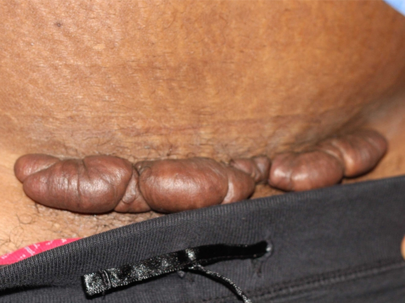Typical post C-Section keloid in a young African American female.