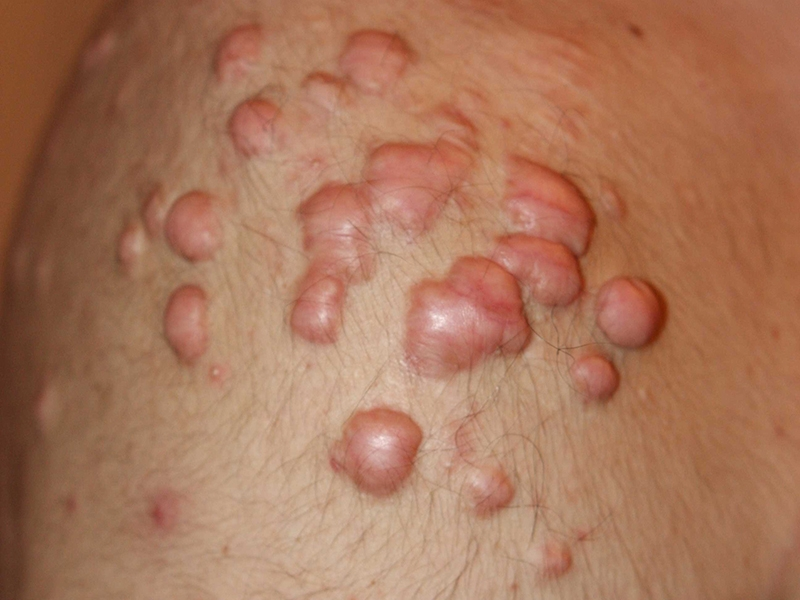 Nodular Shoulder Keloids