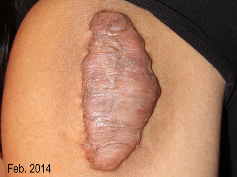 Upper Arm Keloid