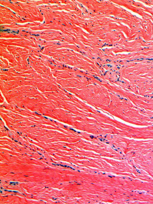 Keloid Pathology