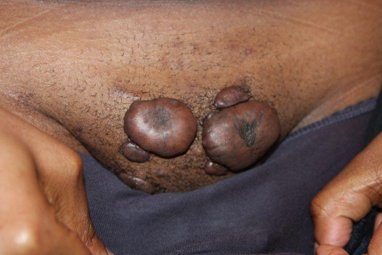 Multiple Large Pubic Keloids
