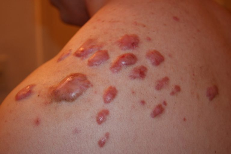 Shoulder Keloid Treated with intralesional chemotherapy