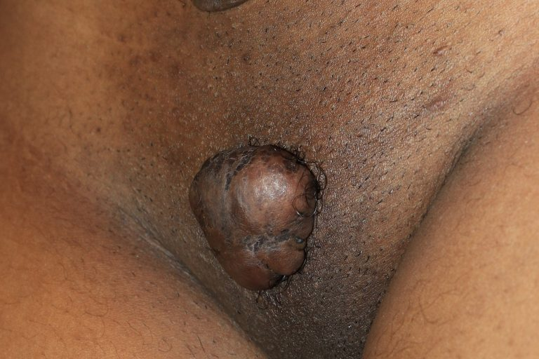 Large Tumoral Pubic Keloid Treated by Dr. Tirgan