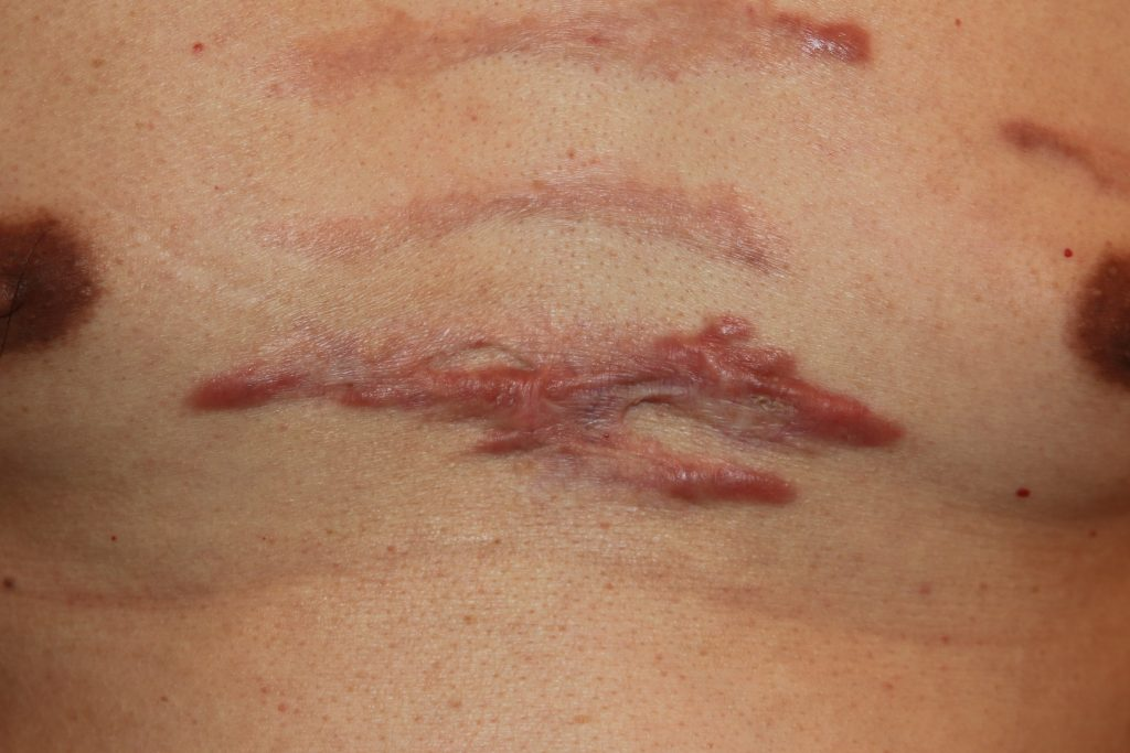 Challenging chest keloid treated with chemotherapy