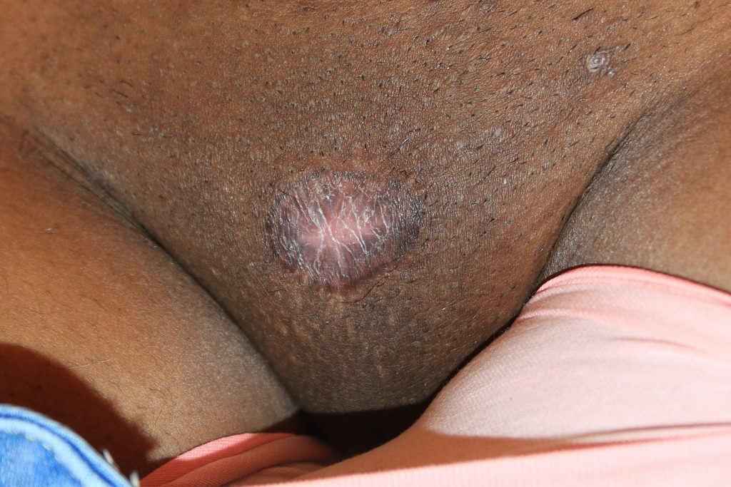 Tumoral Pubic Keloid Treated with Cryotherapy