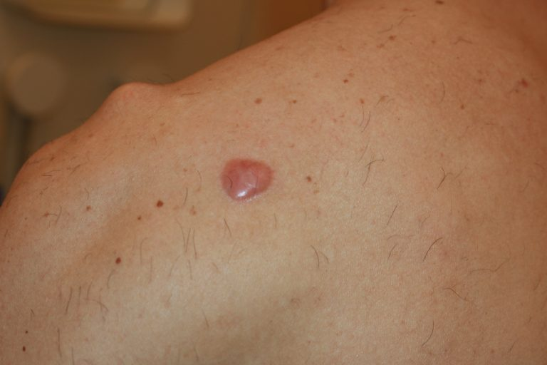 Shoulder Keloid