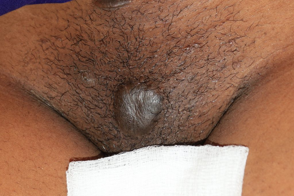 Minor recurrence at the base of the pubic keloid -