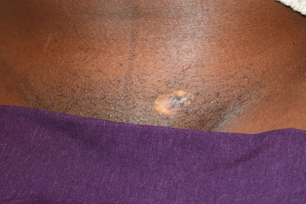 Raised pubic Keloid