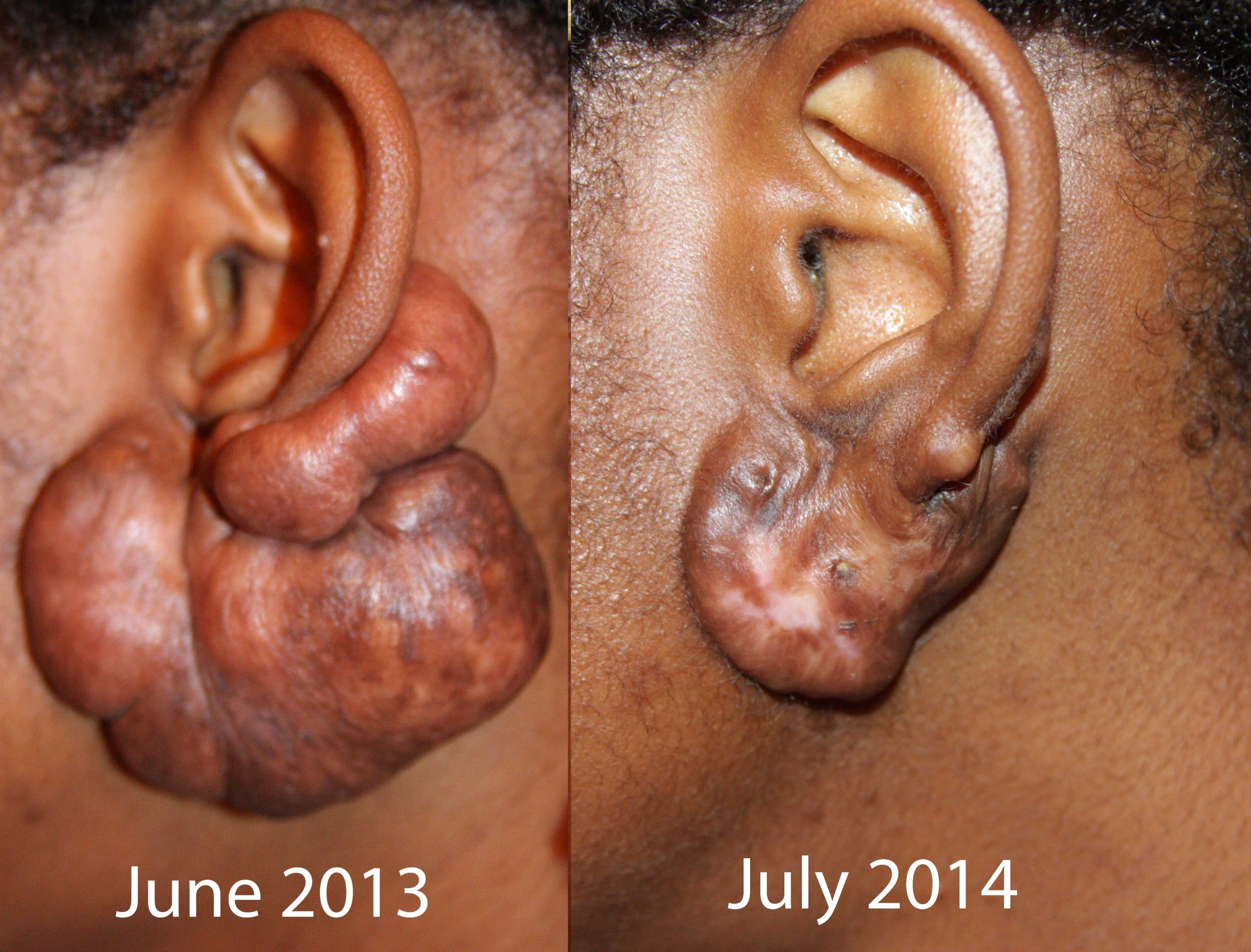 Massive Ear Keloids - Treated with Cryotherapy