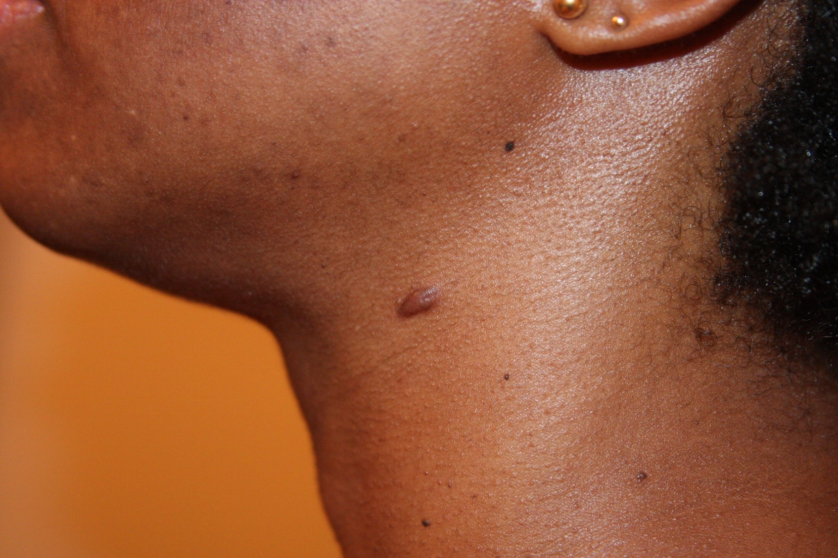 Early Stage, Papular Neck Keloid