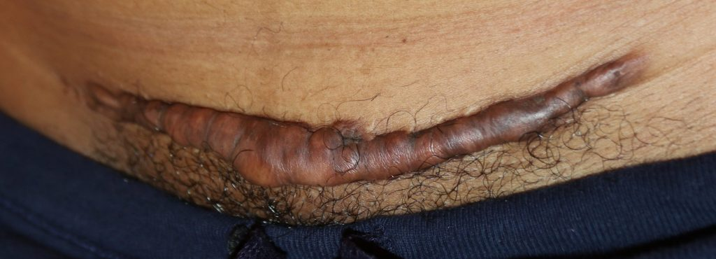 post c-section keloid