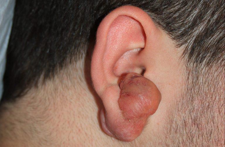 Complex Large Ear Keloid