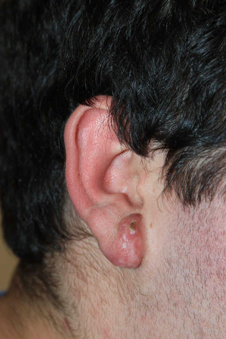 Large Complex Right Ear Keloid