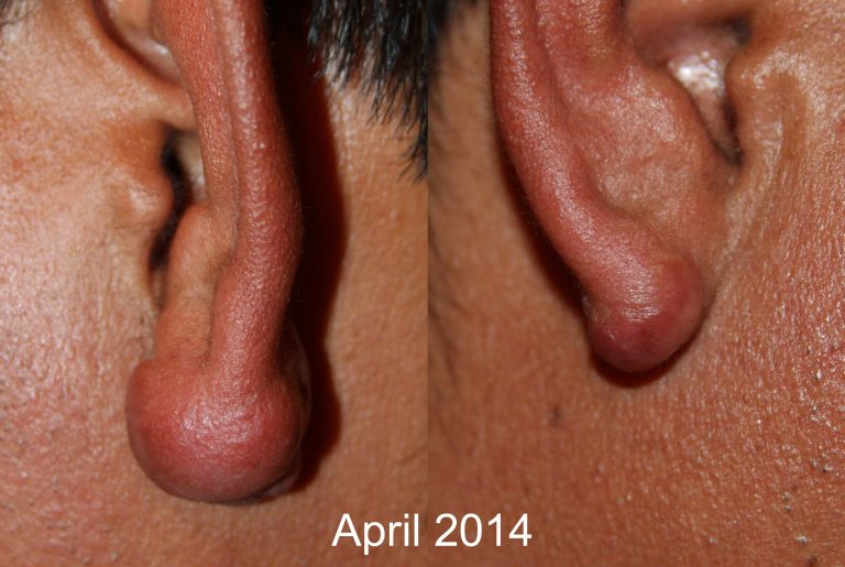 Ear keloids treated with cryotherapy