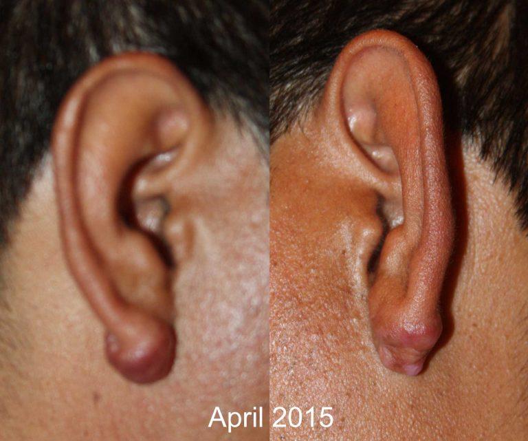 Ear Keloid